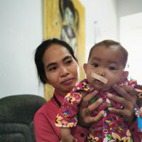 Patientin nach Gesichtsspalten-Operation. Foto: Ärzte der Welt