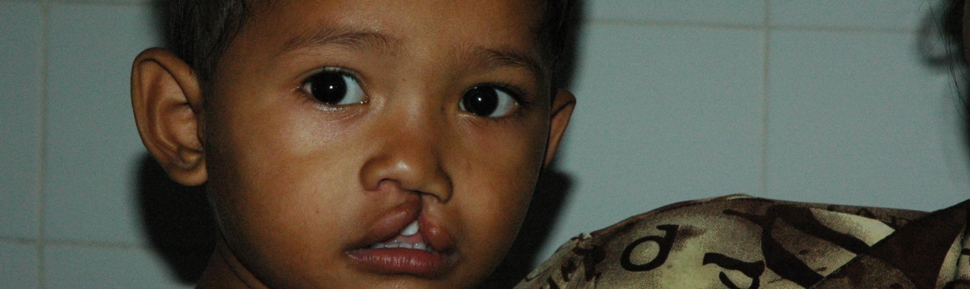 Kind mit Gaumenspalte in Kamboscha. Foto: Fabian Fierchter